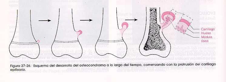 Cartilago epifisario